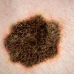 malign-melanom tedavisi